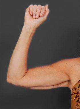 Arm Liposuction Photos: Case 6