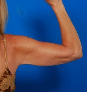 Arm Liposuction Photos: Case 6 - After 1 Year