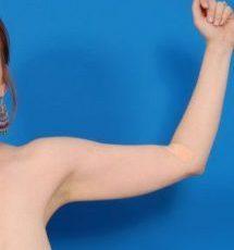 Arm Liposuction Photos: Case 7