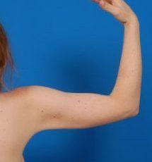 Arm Liposuction Photos: Case 7 - After 6 Months