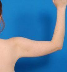 Arm Liposuction Photos: Case 7 - before