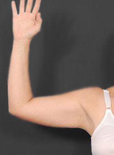 Arm Liposuction Photos: Case 8