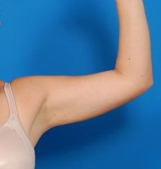 Arm Liposuction Photos: Case 8 - After 6 Weeks