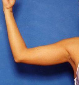 Arm Liposuction Photos: Case 9