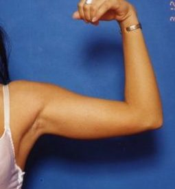 Arm Liposuction Photos: Case 9 - before
