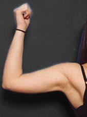 Arm Liposuction Photos: Case 1