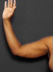 Arm Liposuction Photos: Case 3