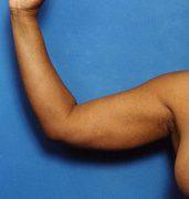 Arm Liposuction Photos: Case 3 - before