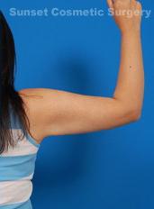 Arm Liposuction Photos: Case 4 - after