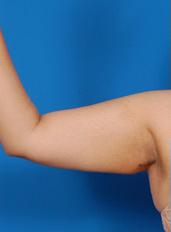 Arm Liposuction Photos: Case 4 - before