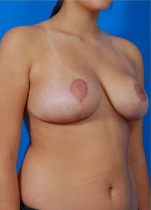 Breast Reduction Photos: Case 6 - after