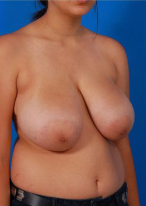 Breast Reduction Photos: Case 6 - before