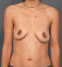Breast Lift Photos: Benelli Only: Case 12