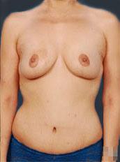 Body Lift Photos: Case 2