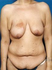 Body Lift Photos: Case 2 - before