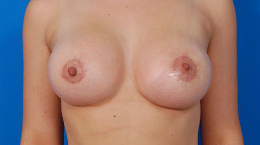 Breast Asymmetry Correction with Mastopexy 18 - after