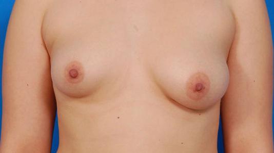 Breast Asymmetry Correction with Mastopexy 18