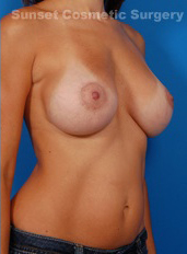Breast Asymmetry Photos: Case 1 - After 6 Months