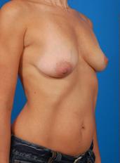 Breast Asymmetry Photos: Case 1 - before