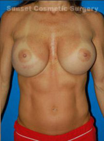 Breast Asymmetry Photos: Case 2 - after