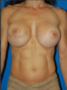 Breast Asymmetry Photos: Case 2 - before