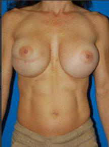 Breast Asymmetry Photos: Case 2