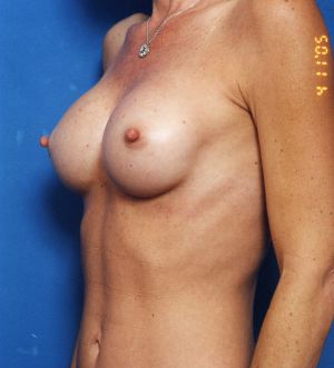 Breast Asymmetry Photos: Case 4 - After 4 Months