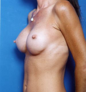 Breast Asymmetry Photos: Case 4 - before
