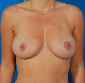 Breast Augmentation with Fat Transfer Case 2