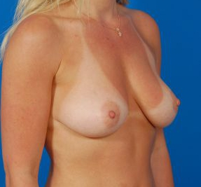 Breast Augmentation with Fat Transfer Case 2 - before