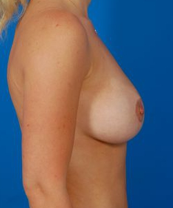 Breast Augmentation with Fat Transfer Case 2 - After 6 Weeks