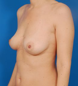 Breast Augmentation with Fat Transfer Case 1 - before