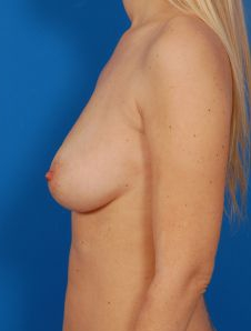 Breast Augmentation with Fat Transfer Case 1 - After 5 Months