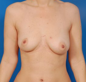Breast Augmentation with Fat Transfer Case 1