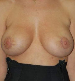 Breast Lift Photos: Benelli Only: Case 13
