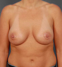 Breast Lift Photos: Benelli Only: Case 14