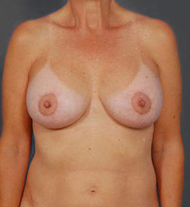 Breast Lift Photos: Benelli: Case 18