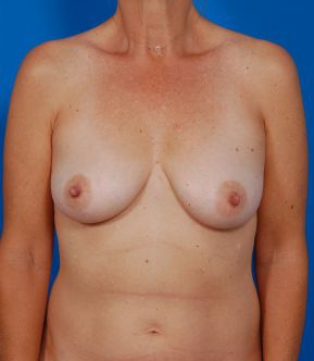 Breast Lift Photos: Benelli: Case 18 - before