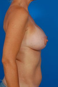 Breast Lift Photos: Benelli: Case 18 - After 2 Months