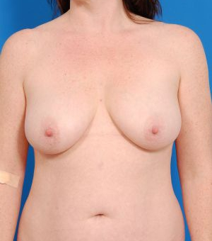 Breast Lift Photos: Benelli: Case 3311