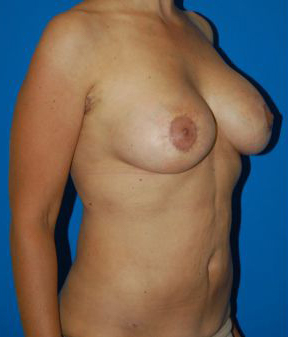 Breast Lift Photos: Benelli Only: Case 1 - after