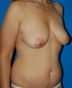 Breast Lift Photos: Benelli Only: Case 1 - before