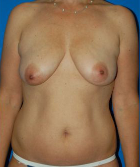 Breast Lift Photos: Benelli Only: Case 1
