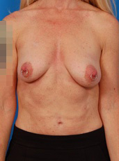 Breast Lift Photos: Benelli Only: Case 10