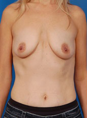 Breast Lift Photos: Benelli Only: Case 11