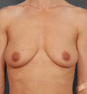 Breast Lift Photos: Benelli Only: Case 2