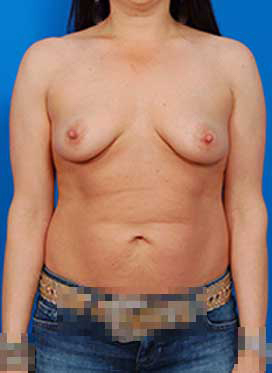 Breast Lift Photos: Benelli Only: Case 3