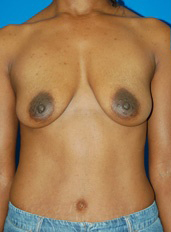 Breast Lift Photos: Benelli Only: Case 5