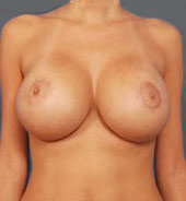 Breast Lift Photos: Benelli Only: Case 7