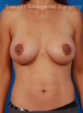 Breast Lift Photos: Benelli Only: Case 8 - After 3 Weeks